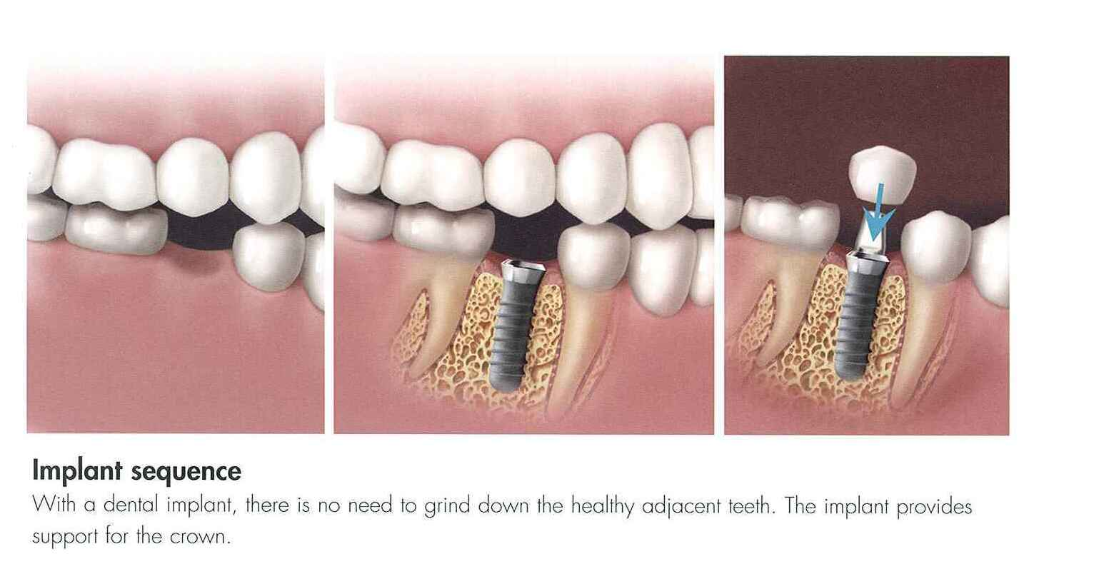 Dental Implants Join Our Family Today