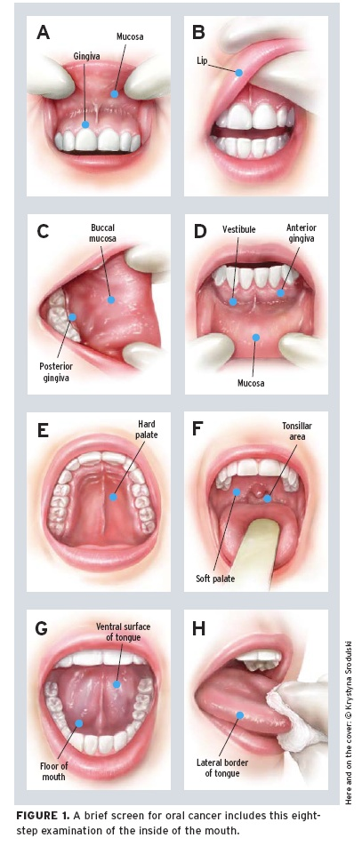 Oral Cancer Screening | Join Our Family
