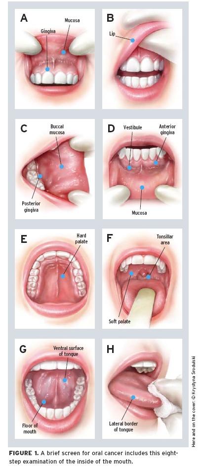 oralcancer1007fig1_49539