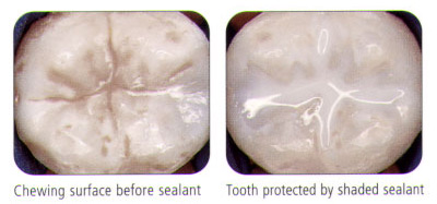 sealents