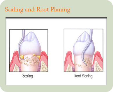 Periodontal Disease Treatment Join Our Family Today